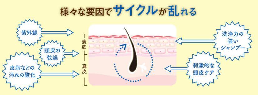 natulp(ナチュルプ) 頭皮トラブルの原因